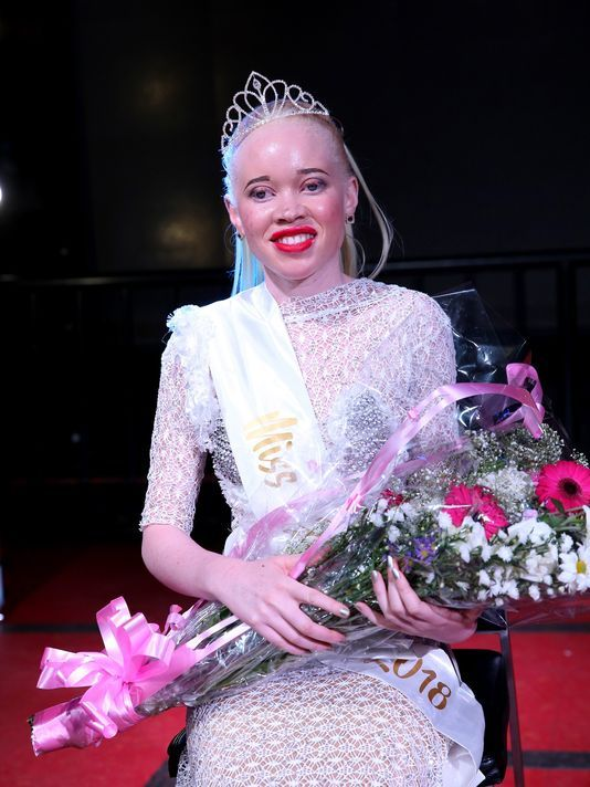 Miss Albinism Zimbabwe 2018 winner Sithembiso Mutukura poses for a picture with her crown after a beauty contest featuring people with albinism in Harare, Zimbabwe, on March 16, 2018. (Photo: Aaron Ufumeli, EPA)