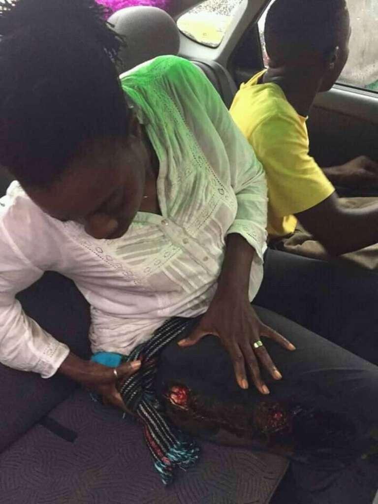 V.P MRC women's wing Michel Ndoki shot while demonstrating in Douala