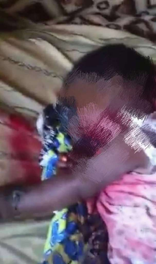 4 month old child reportedly shot dead by security forces in Muyuka, Cameroon. Picture credit, MMI